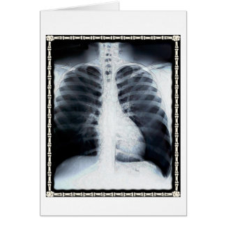 X-Ray Chest Greeting Card