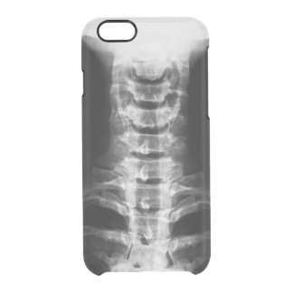 X-Ray Digital Artwork Clear iPhone Case
