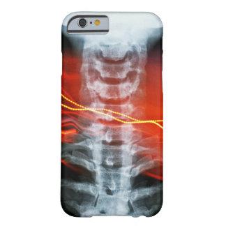 X-Ray Digital Artwork Phone Case