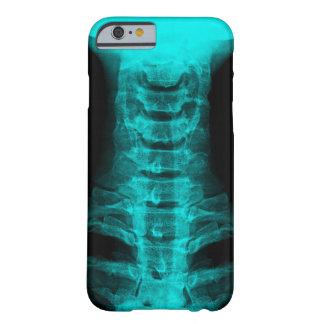 X-Ray Digital Artwork {Teal} Phone Case