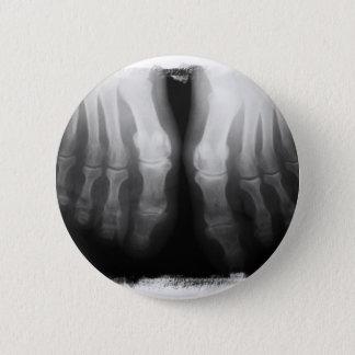 X-Ray Feet Human Skeleton Bones Black & White 6 Cm Round Badge