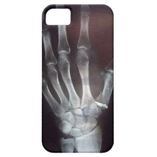 X Ray Hand Phone Case