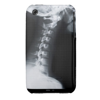 X ray of neck vertebrae including lower jaw iPhone 3 cover