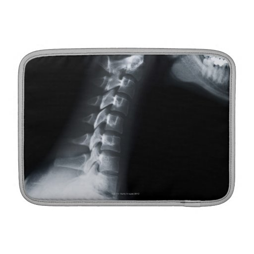 X ray of neck vertebrae including lower jaw MacBook sleeve