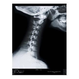 X ray of neck vertebrae including lower jaw postcard