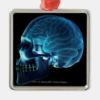 X-ray of the brain inside a skull metal ornament