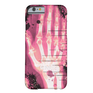 X-Ray Punk iPhone 6 case ID Case 011 Barely There iPhone 6 Case
