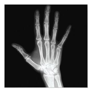 X-Ray Skeleton Arms Black & White Card