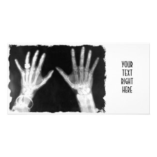 X-Ray Skeleton Hands & Jewelry - B&W Photo Greeting Card
