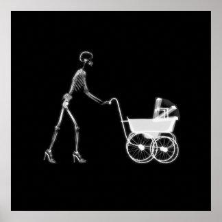 X-Ray Skeleton Mom & Baby - Original B&W Poster