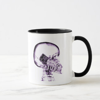 X-RAY SKELETON ON PHONE - PURPLE MUG