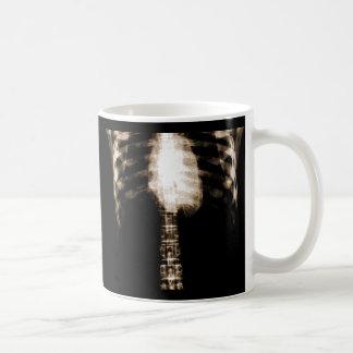X-RAY SKELETON TORSO RIBS - SEPIA COFFEE MUGS