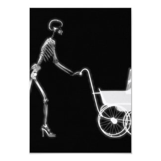 X-RAY SKELETON WOMAN & BABY CARRIAGE - B&W 9 CM X 13 CM INVITATION CARD