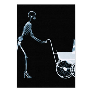 X-RAY SKELETON WOMAN BABY CARRIAGE - BLUE INVITATION