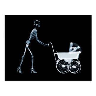 X-RAY SKELETON WOMAN & BABY CARRIAGE - BLUE POSTCARD