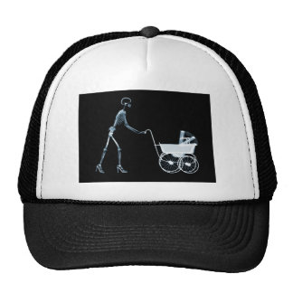 X-RAY SKELETON WOMAN CARRIAGE - BLUE CAP
