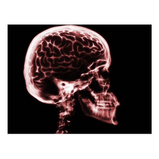 X-RAY SKULL BRAIN - RED POSTCARDS