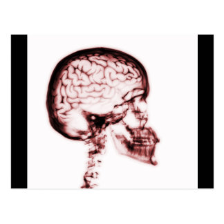 X-RAY SKULL BRAIN - RED POST CARDS