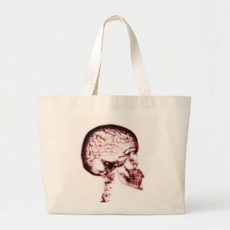 X-RAY SKULL BRAIN - RED TOTE BAGS