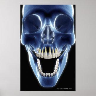 X-ray style look at human teeth poster