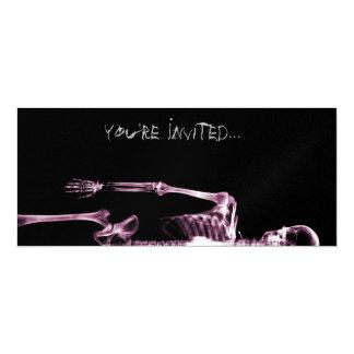 "X-Ray Vision Pink Single Skeleton Invites 4"" X 9.25"" Invitation Card"