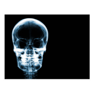 X-RAY VISION SKELETON SKULL - BLUE POSTCARD