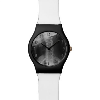 X-rayed 2 watch