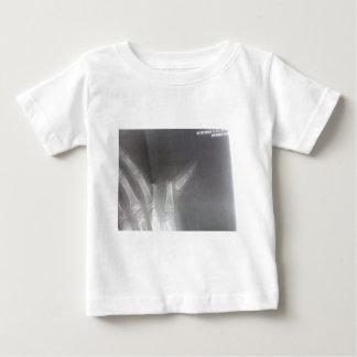 Xray Baby T-Shirt