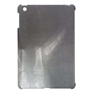 Xray Case For The iPad Mini
