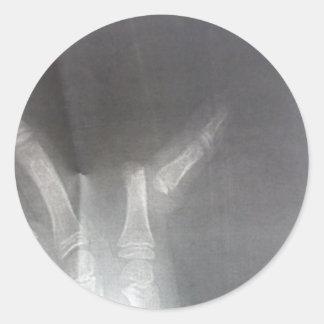 Xray Classic Round Sticker