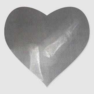 Xray Heart Sticker