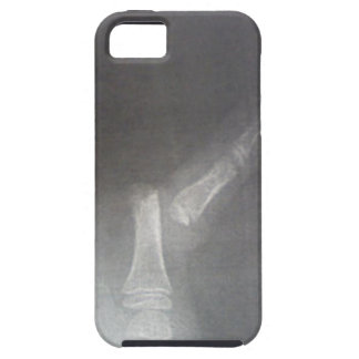 Xray iPhone 5 Cover