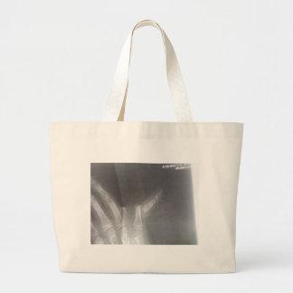 Xray Large Tote Bag