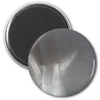 Xray Magnet