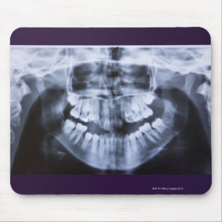 Xray of a girls jawline taken with a panoramic mouse pad