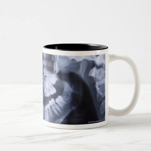 Xray of a girls jawline taken with a panoramic mug