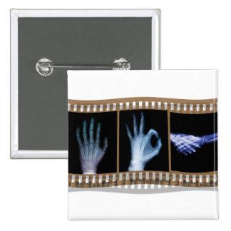 XRAY SIGN LANGUAGE FILM - HAND OK HANDSHAKE PINS