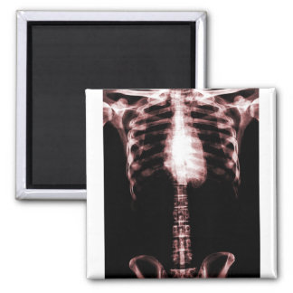 XRAY SKELETON TORSO RIBS RED SQUARE MAGNET