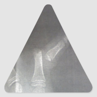 Xray Triangle Sticker