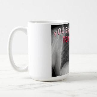 """you bring colour to my heart"" x-ray mug"